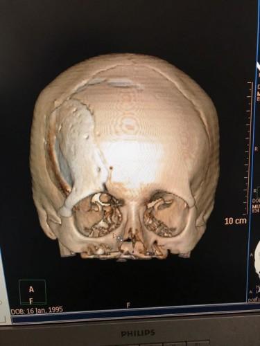 """""""Я заново родилась"""". Алматинке удалили опухоль головы и вставили уникальный имплант"""