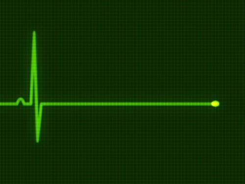 Женщина скончалась от ножевых ранений в больнице Костаная