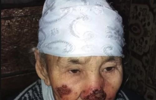 Неизвестная эпидемия: жители села в ЮКО не могут вылечить болезнь (фото 18+)