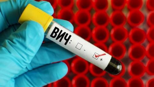 В Казахстане через слюну будут определять статус ВИЧ-инфицированных