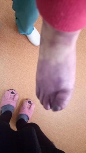 Девочке грозит ампутация после установки катетера в больнице Астаны