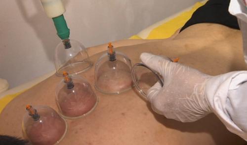 Гепатитом и ВИЧ-инфекцией можно заразиться при хиджаме – санврачи предупреждают