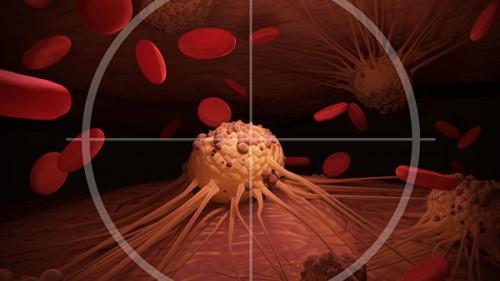 """""""Рано могут дать метастазы"""". Как лечат самые агрессивные виды рака"""