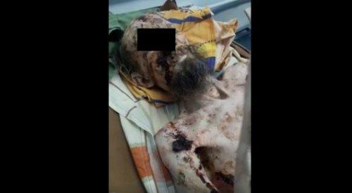Восставший из могилы россиянин оказался страдающим от псориаза актюбинцем