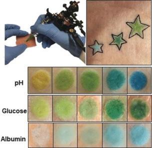 Татуировка от диабета? Новый способ измерять уровень глюкозы от немецких ученых