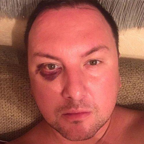 Работающего в Актау шоумена избили в собственной квартире