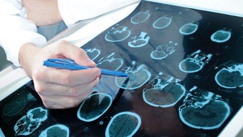Нейрохирург рассказал, какие симптомы указывают на рак головного мозга