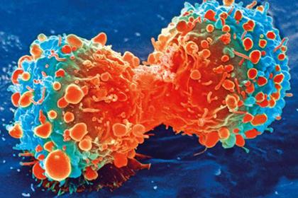 Ученые сообщили, что достигли прорыва в лечении рака