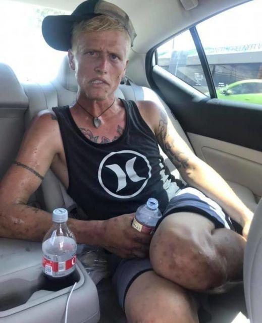 Мать выложила жуткое фото, показав, что наркотики сделали с сыном за 7 месяцев
