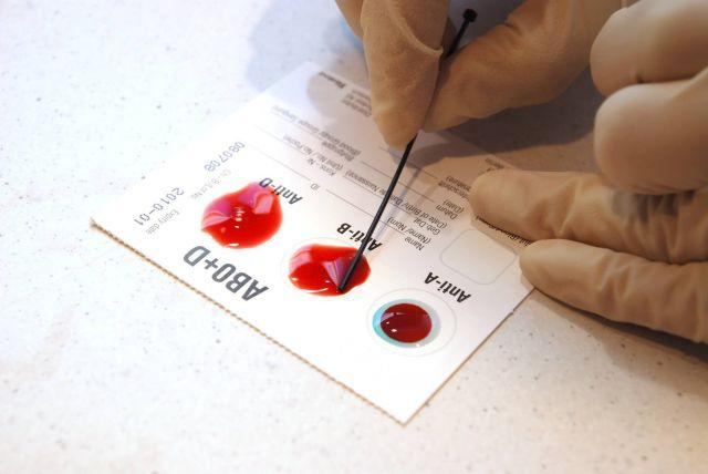 Ученые установили, люди какой группы крови чаще всего подвержены раку