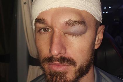 Футболист ударился о «бетонную» голову партнера и получил огромную гематому