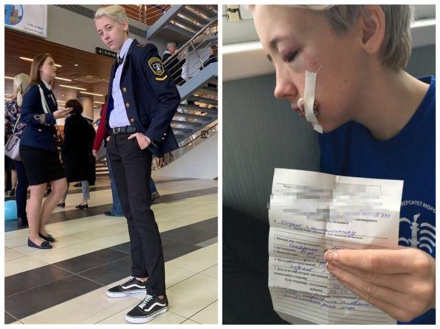 В Санкт-Петербурге семеро мужчин избили 18-летнюю курсантку из-за внешности