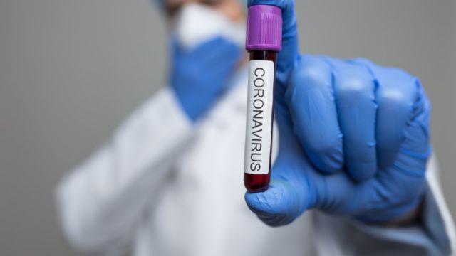 Еще 1 случай заражения коронавирусом выявили в Алматы