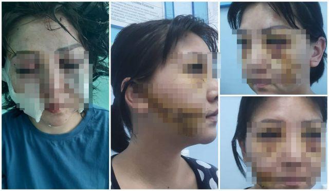 «Чтобы ко мне никогда близко не подходил!» В Актобе вынесли приговор мужу, изрезавшему ножом лицо своей бывшей жене