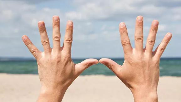 Врач предупредила об опасности белых полосок на ногтях