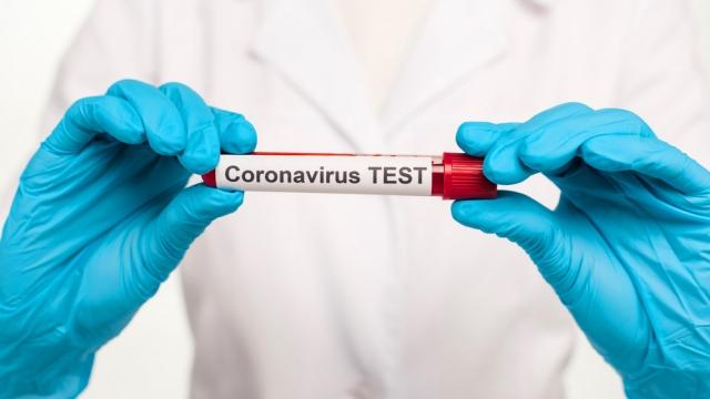 В Казахстане отказались от деления больных коронавирусом на симптомных и бессимптомых