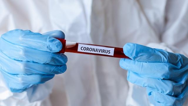 1376 новых случаев коронавируса зарегистрированы в Казахстане