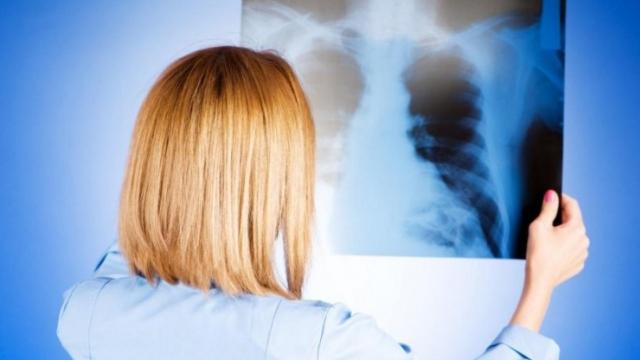 1 799 случаев и 17 смертей - о коронавирусной пневмонии за сутки