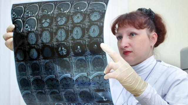 Врач назвал способ улучшить работу головного мозга
