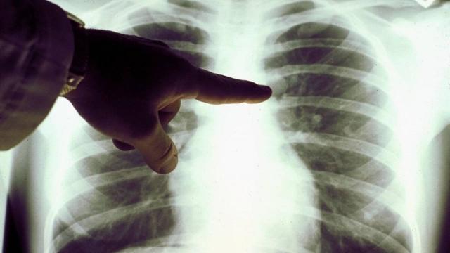 Снизилось число выявленных случаев пневмонии в Казахстане