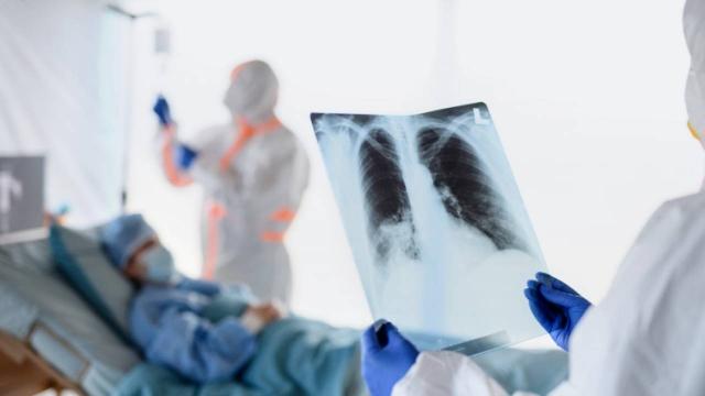 172 новых случаев пневмонии с признаками коронавируса зафиксированы в Казахстане