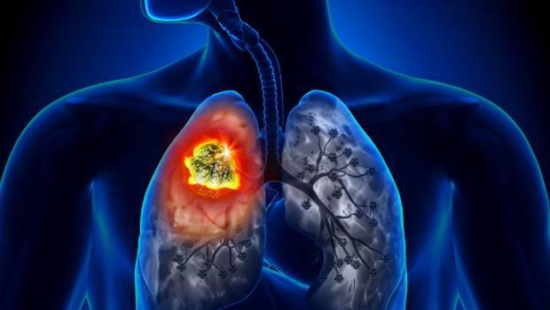 Названы неожиданные симптомы рака легких
