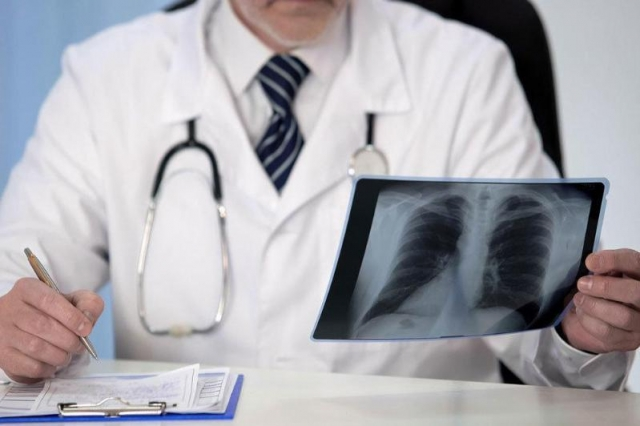 Пневмония с признаками коронавируса: 161 заболевших и 5 летальных исходов за сутки