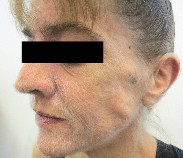 Женщина показала лицо после 37 лет курения и озадачила врачей