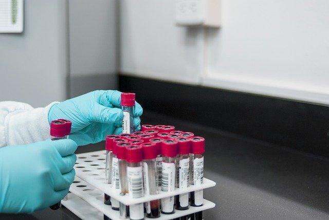 Учёные обнаружили связь между опасными заболеваниями и группой крови