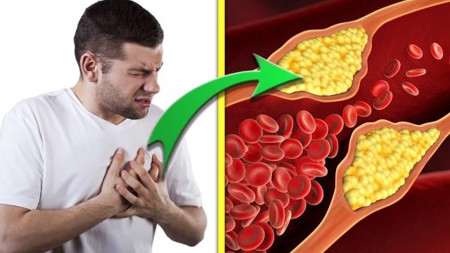 Какие внешние признаки указывают на высокий уровень холестерина?