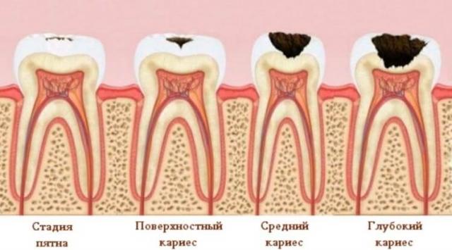 Разработаны вкусные конфеты для укрепления и отбеливания зубов